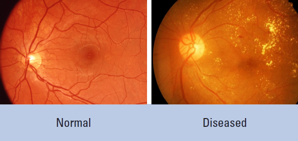 Diabetes-related retinopathy