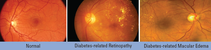 Normal eyes, eyes with diabete-related retinopathy, and eyes with diabetes-related macular edema