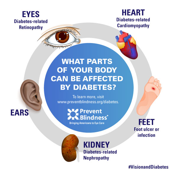 Diabetes infographic - Your Body