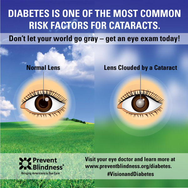 Diabetes infographic - Cataract Risk