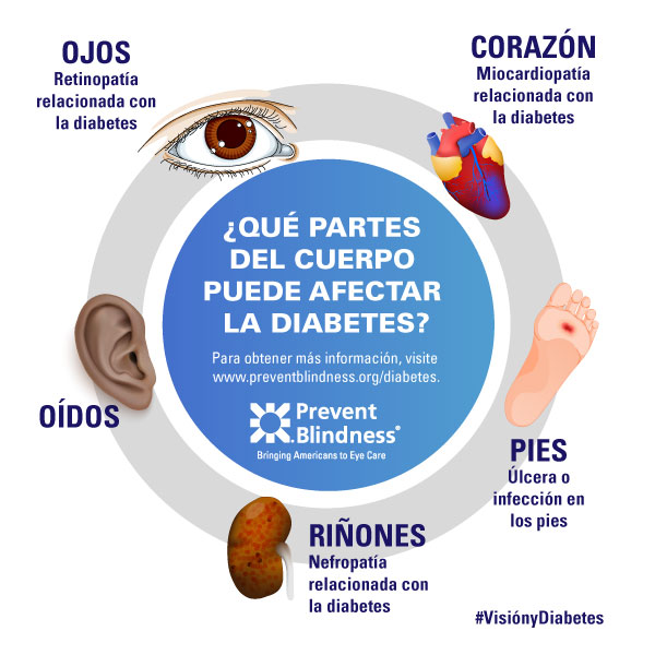 Diabetes Infographic 3 (Spanish