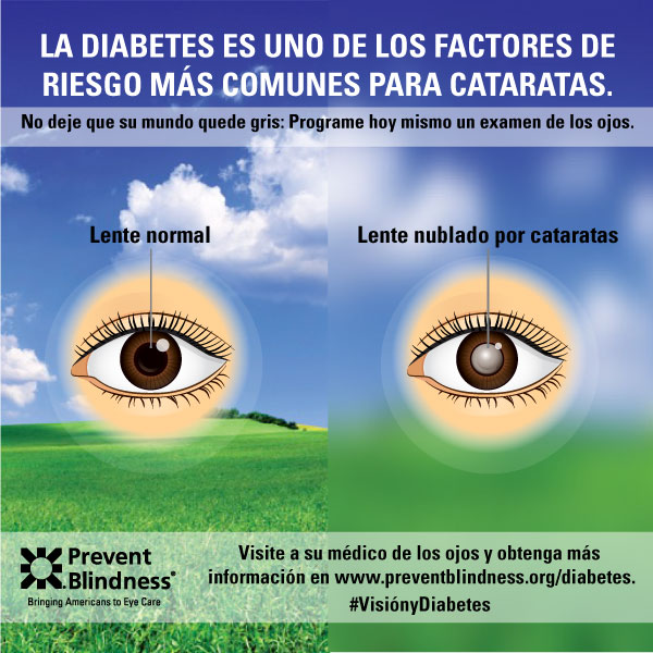 Diabetes Infographic 5 (Spanish)