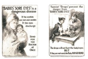 Babies' Sore Eyes