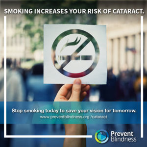 Cataract and Smoking
