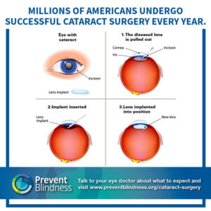 Millions of Americans Undergo Successful Cataract Surgery Every Year
