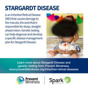 Inherited Retinal Disease - Stargardt Disease