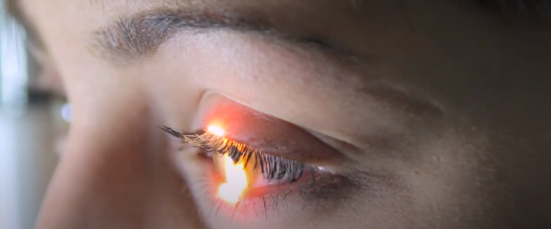 New Prevent Blindness Identity Video screenshot