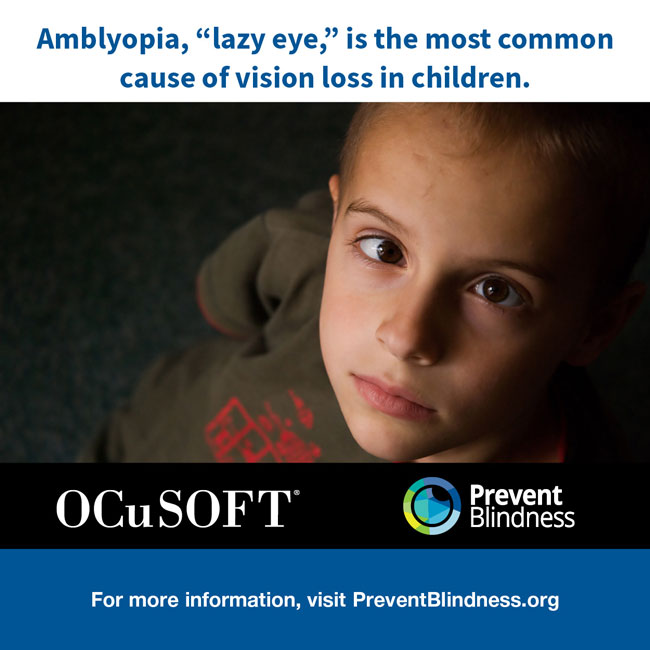 """Amblyopia, """"lazy eye,"""" is the most common cause of vision loss in children."""
