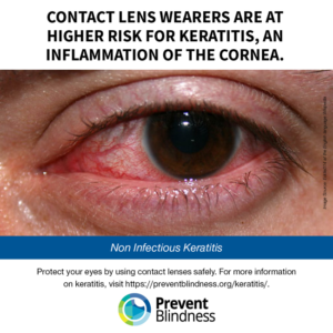 Contact lens wearers are at higher risk for keratitis, an inflammation of the cornea.