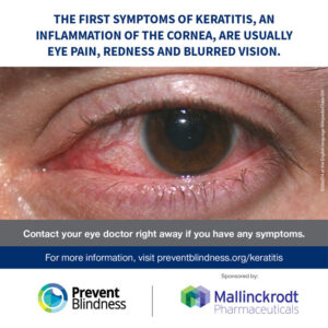 The first symptoms of keratitis, an inflammation of the cornea, are usually eye pain, redness, and blurred vision.