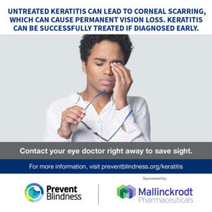 Untreated keratitis can lead to corneal scarring, which can cause permanent vision loss. Keratitis can be successfully treated if diagnosed early.