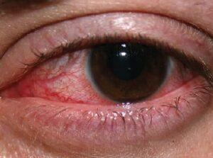 Non Infectious Keratitis