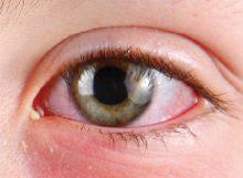 Conjunctivitis (Pink Eye)