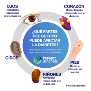 diabetes-related eye disease infographic