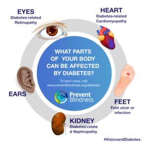 What Parts of Your Body Can Be Affected By Diabetes?