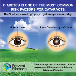 Diabetes is one of the most common risk factors for cataracts.