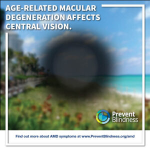 Age-related macular degeneration affects central vision.