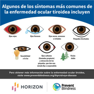Thyroid Eye Disease - TED - Spanish
