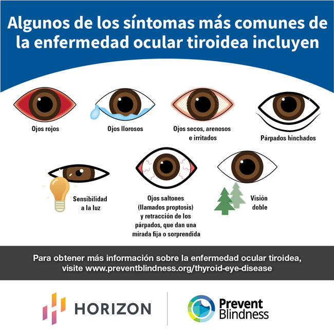 Algunos De Los Síntomas Más Comunes De La Enfermedad Ocular Tiroidea Incluyen