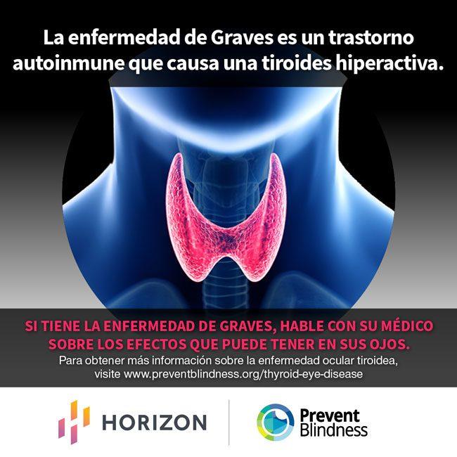 La Enfermedad De Graves Es Un Trastorno Autoinmune Que Causa Una Tiroides Hiperactiva