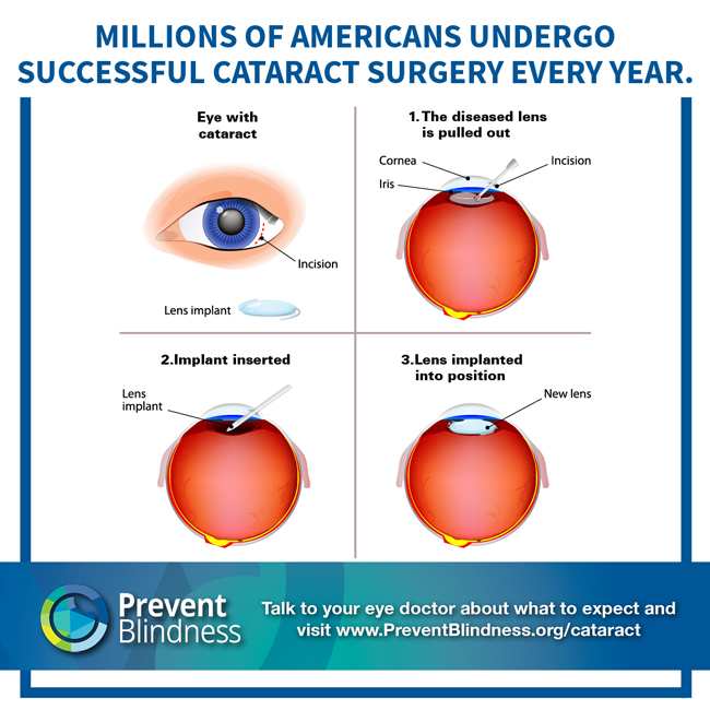 Millions of Americans Undergo Successful Cataract Surgery Every Year.