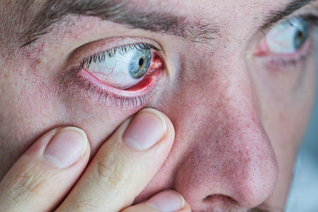 man looking at his eye