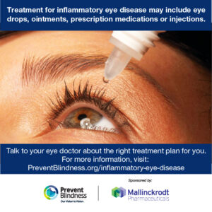 Treatment for inflammatory eye disease may include eye drops, ointments, prescription medications or injections.