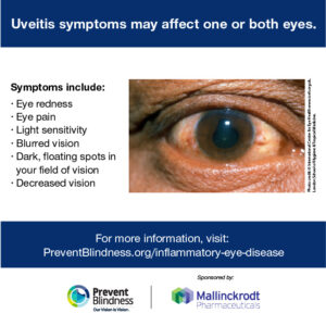 Uveitis symptoms may affect one or both eyes